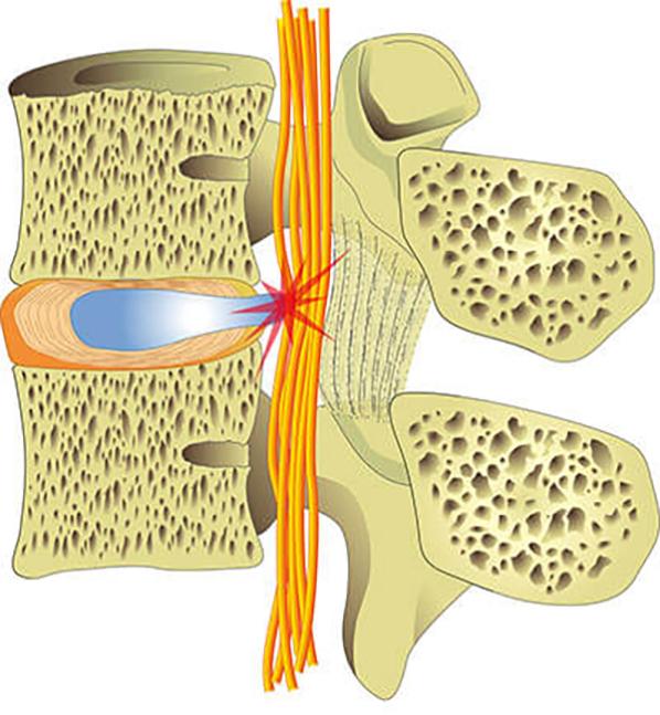 Zwei Wirbelkörper, zwischen denen eine austretende Bandscheibe zu sehen ist. Die Masse drückt auf Rückenmarksnerven