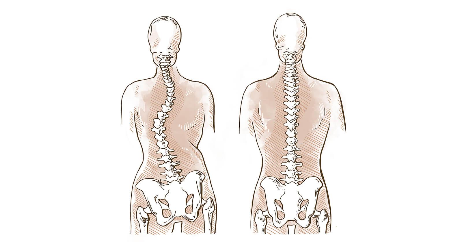 Gegenüberstellung einer gesunden Wirbelsäule und einer Wirbelsäule mit Skoliose