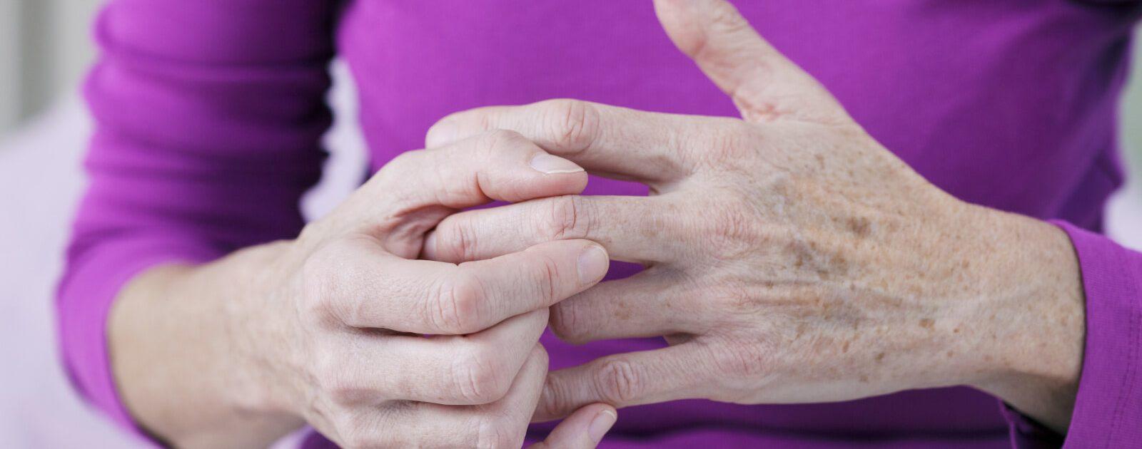 Ältere Dame leidet unter Arthrose in den Händen.