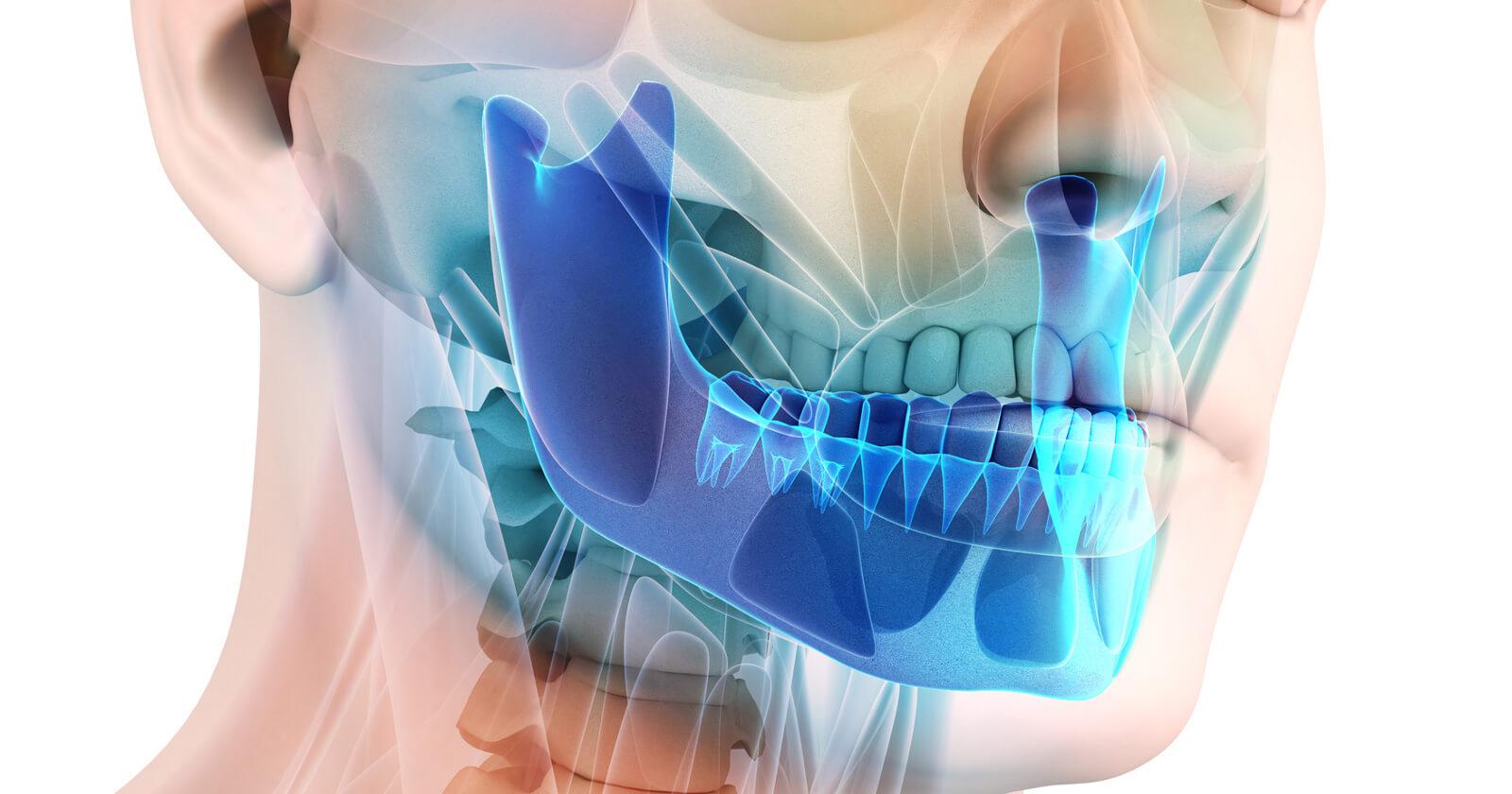 Illustration eines Menschen mit Hervorhebung des Kieferbereichs: Hier kann ein CMD-Syndrom vorkommen.