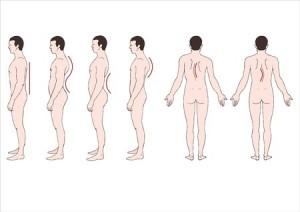 Deformationen der Wirbelsäule