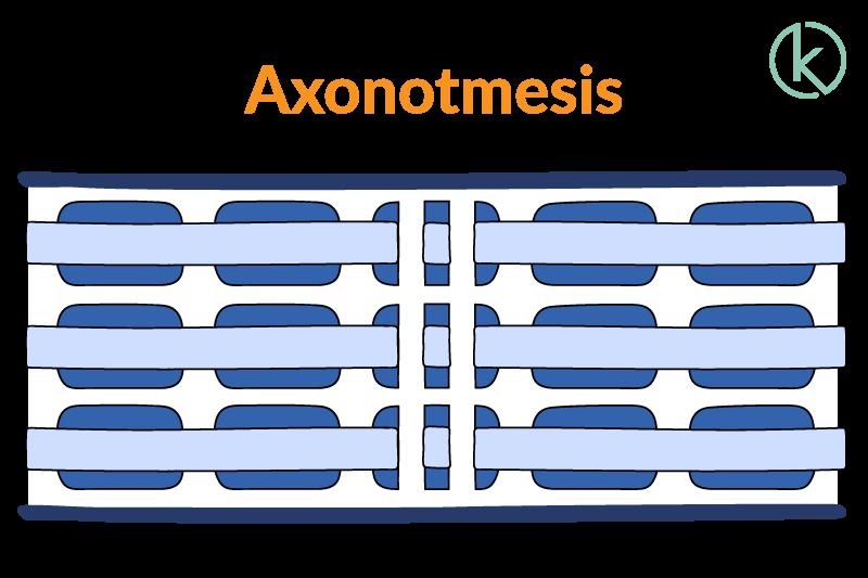 Grafik einer Axonotmesis