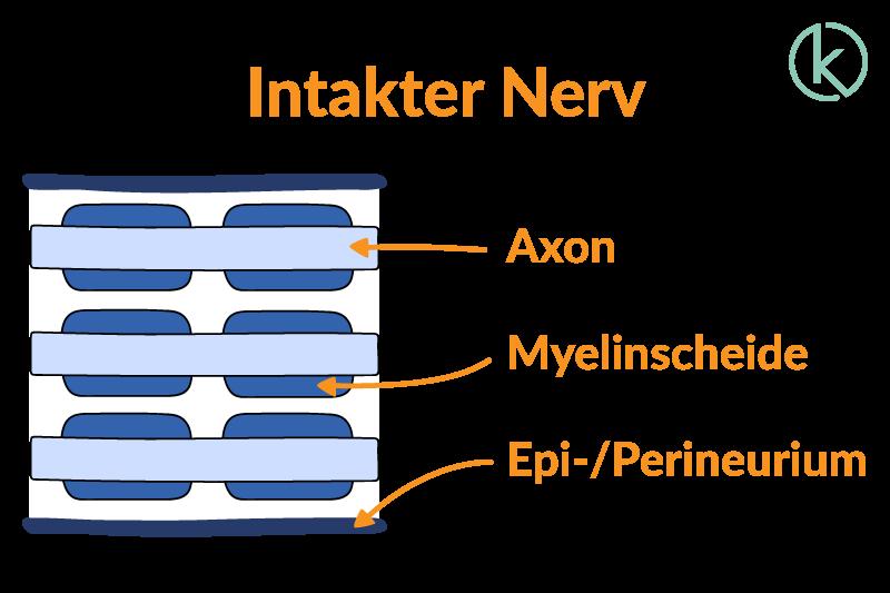 Grafik eines intakten Nervs