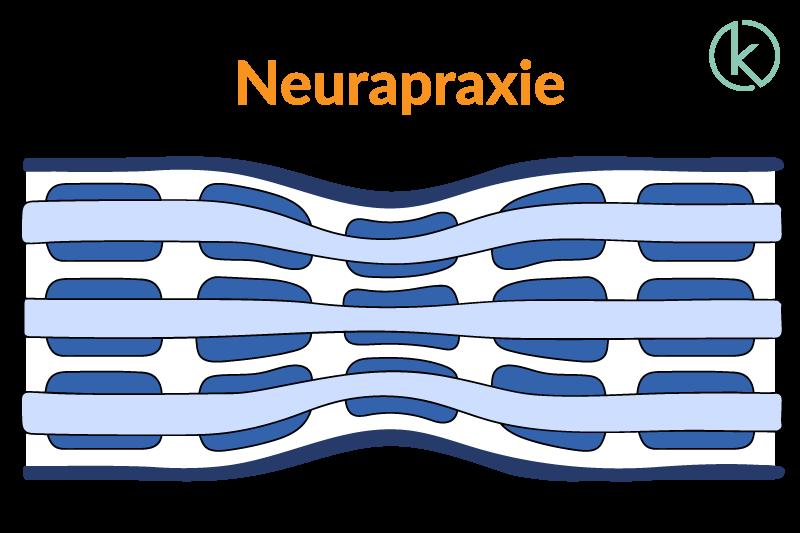 Grafik einer Neuropraxie