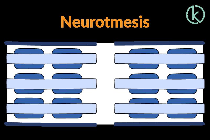 Grafik einer Neurotmesis