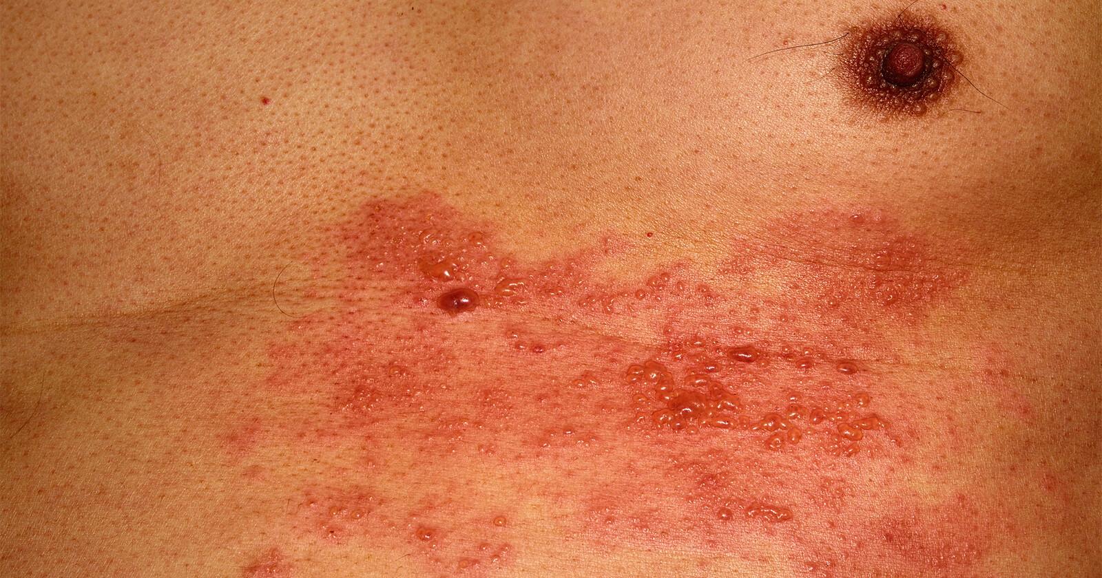 Gürtelrose, auch Herpes zoster genannt, auf dem Brustkorb.