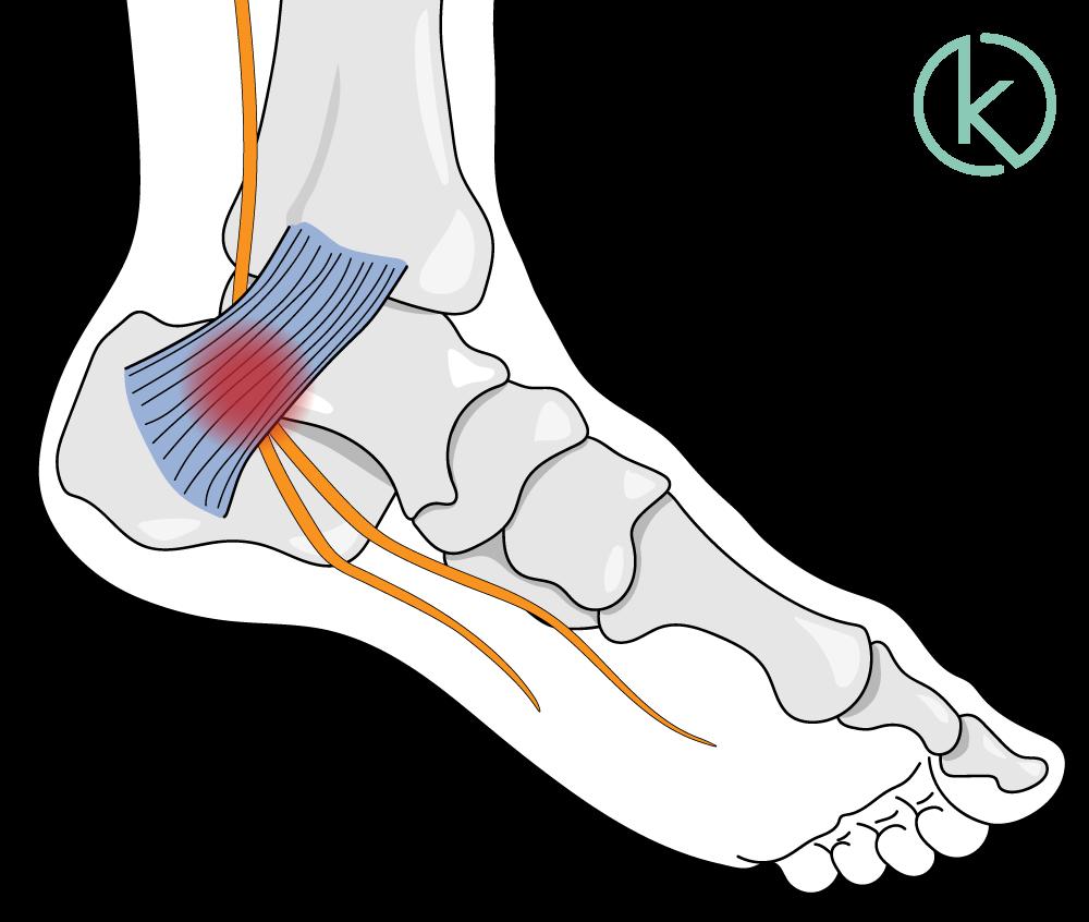 Infografik: Anatomie Tarsaltunnel