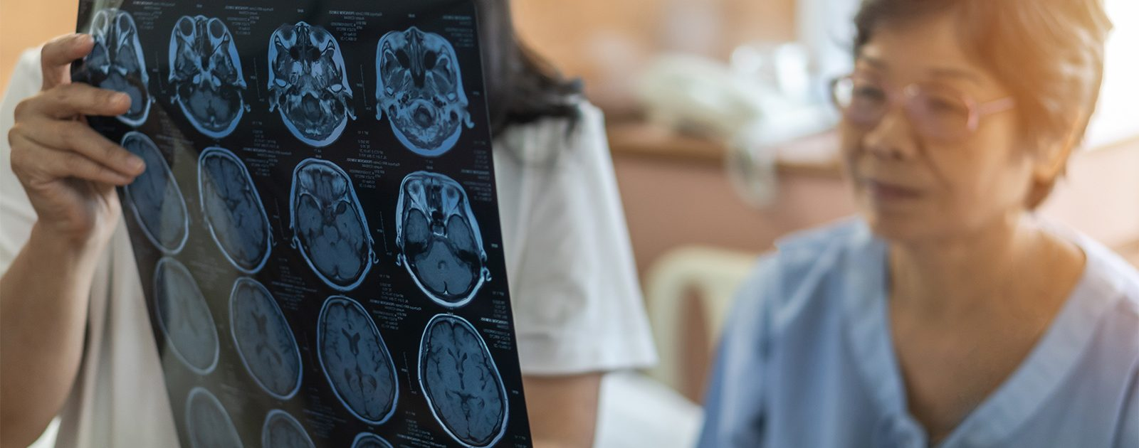 Ärztin zeigt Patientin mit Meningitis einen MRT-Scan.
