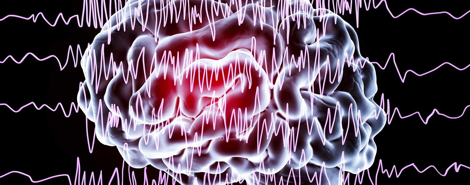 Illustration eines Gehirns und farblich hervorgehobener Gehirnaktivität.