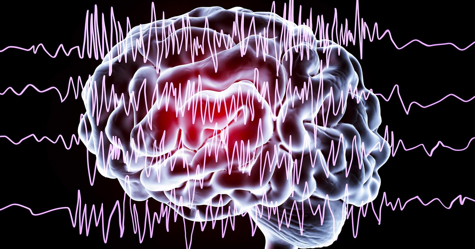 Epilepsie Alternative Heilmethoden