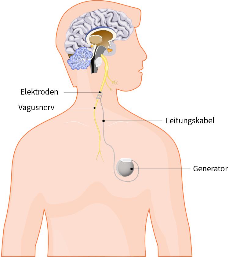 Grafik der Therapiemöglichkeit Hirnstimulation